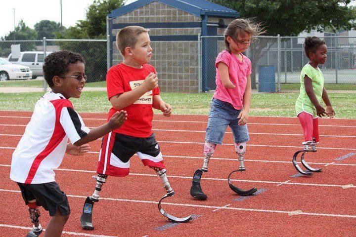 Children_prosthetic limbs